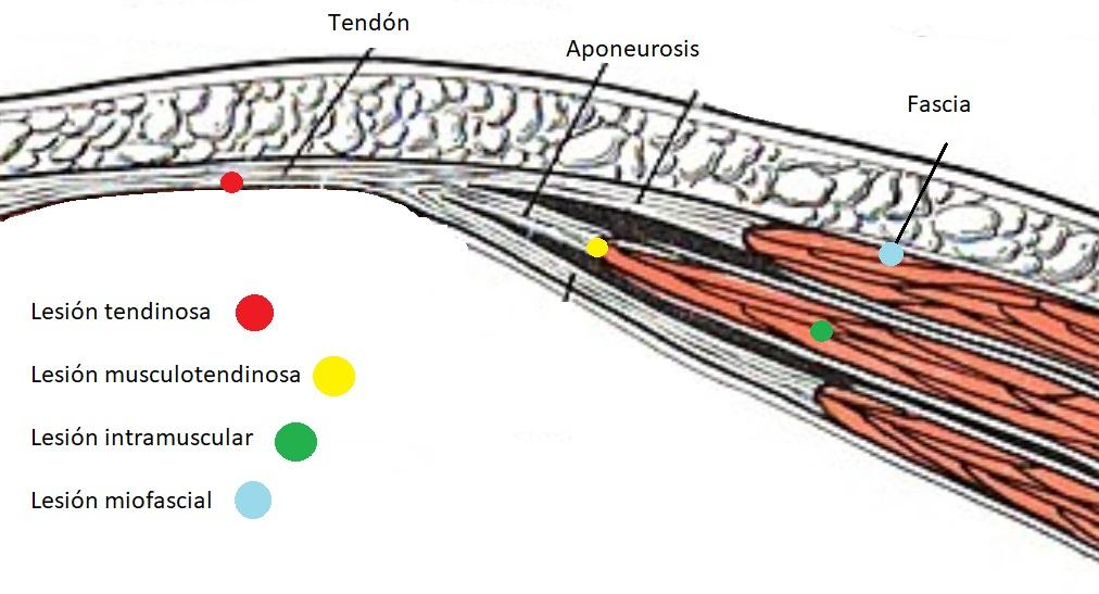 Lesiones de tejido conectivo