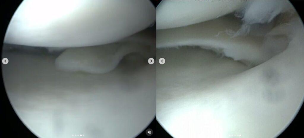 roturameniscalhorizonatal